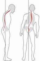 1412882802 posture bad Наслідки порушеної постави симптоми