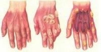 1423578099 hmchn opki Хімічні опіки. Причини. Симптоми. Перша допомога. Лікування.