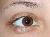 1424243640 yachmn na oc Як вилікувати ячмінь на оці?