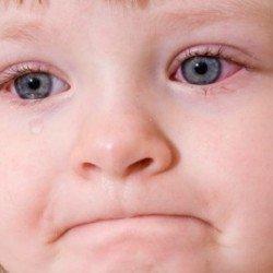 Коньюктівіт у дітей: лікування, симптоми