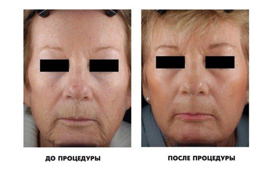 Лазерна підтяжка обличчя (відгуки і ціни)
