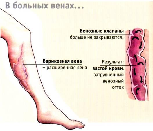 Лікування варикозу. Як позбутися варикозу. Як вилікувати варикоз
