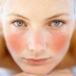 Розацеа на обличчі: причини, симптоми, лікування, профілактика