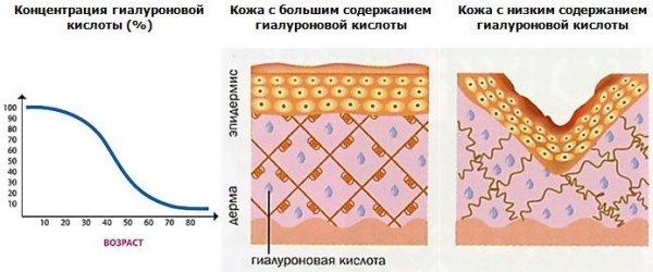 Лазерна біоревіталізація гіалуронової кислотою (відгуки, фото)