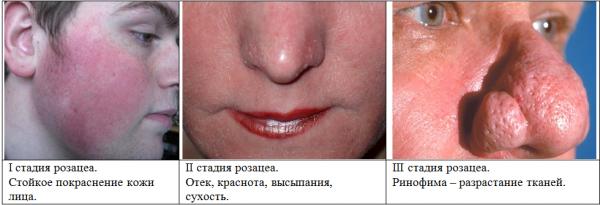 rozacea na oblichch prichini simptomi lkuvannya proflaktika 3 Розацеа на обличчі: причини, симптоми, лікування, профілактика