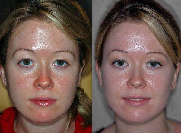 Себорея на обличчі, лікування