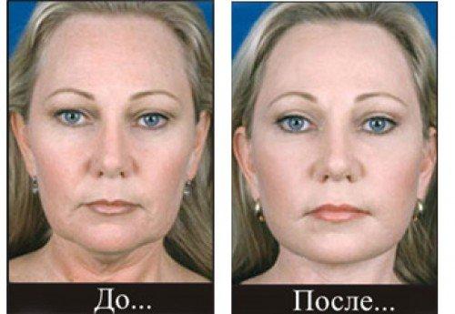 Ультразвукова підтяжка обличчя (відгуки, ціни)