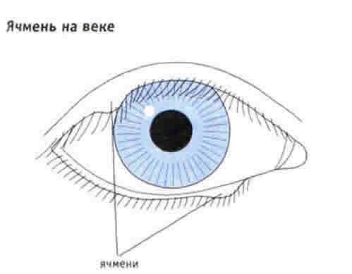 Ячмінь на оці: лікування, симптоми, причини
