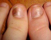 Чорні та темні п\ята і смужки на нігтях