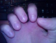 Формування звички гризти нігті