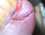 Грибок нігтів на ногах: лікування і профілактика