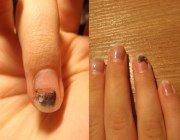 Грибок нігтів рук