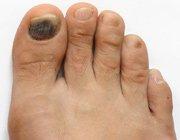 Причини появи білих плям на нігтях