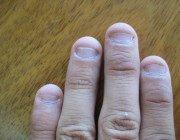 Проблеми на руках дитину: злазять нігті