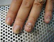 Псоріаз нігтів: діагностування і лікування
