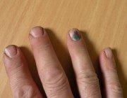 Що робити, якщо чорніють нігті на ногах