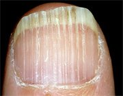 Шукаємо причину білих смужок на нігтях