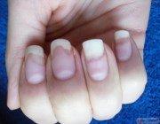 какими станут ногти если их грызть фото