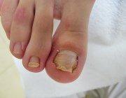 Видалення і лікування врослого нігтя лазером