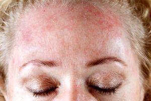 Алергія на сигарети і куріння   симптоми, фото, способи традиційного і альтернативного лікування