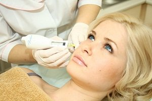 Що таке мезотерапія обличчя? Всі \за\ і \проти\ в розкритому відповіді.