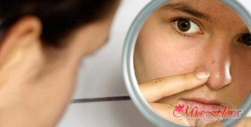 Як позбутися від чорних крапок на носі в домашніх умовах