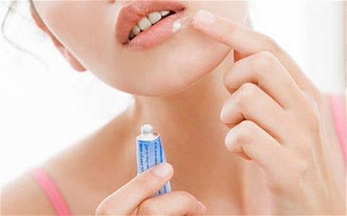Застуда на губах   лікування і профілактика