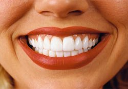 Відбілювання зубів   методи відбілювання зубів