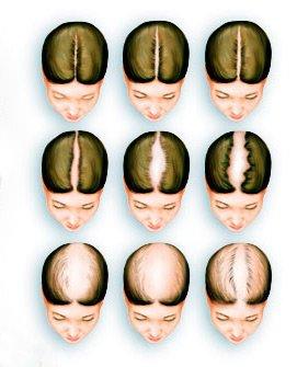 Випадання волосся у жінок: лікування і профілактика