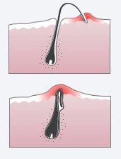 Врослі волосся, що з\явилися після епіляції: методи боротьби і профілактики