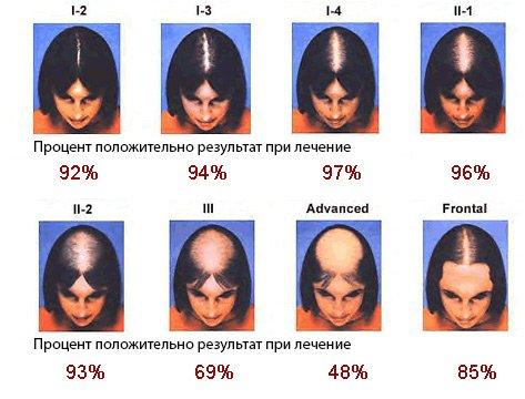 Як розпізнати дифузне випадання волосся і як з ним боротися