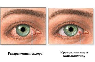 Червоні очі: причини і лікування
