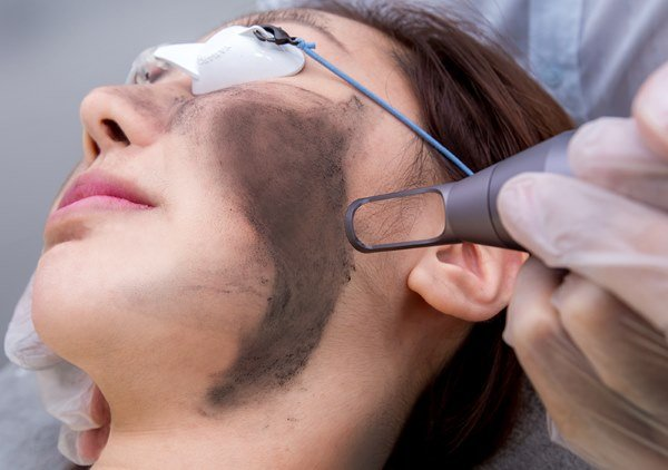 114973a5dd8f47047d2b8cb0d56a5c49 Пилинг лица — косметологическая процедура. Виды пилинга. Фото до и после