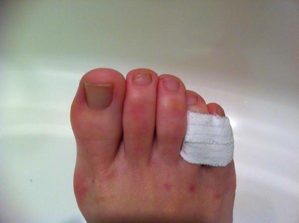Ушиб пальцев на ноге что делать в домашних условиях 5