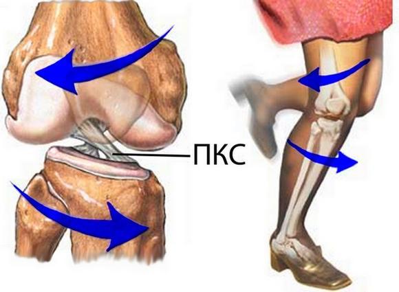 84Как волейболисты лечат колени