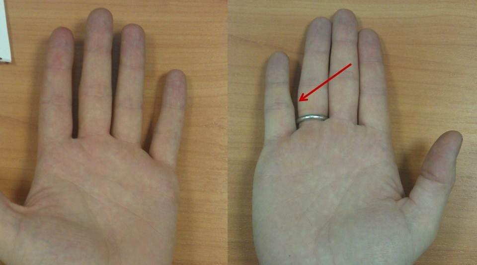 Как понять что перелом пальца на руке