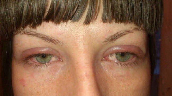 Аллергия на клей для ресниц что делать 148
