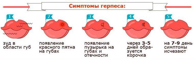 Чим лікувати герпес на губі. Швидке лікування за 1 день, препарати та народні засоби Здоров'я