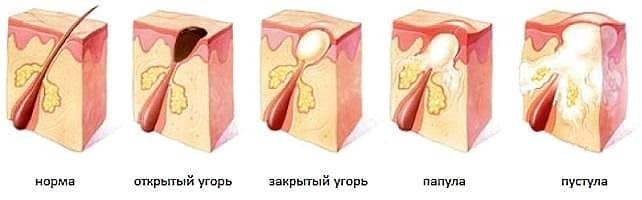 Акне у мужчин причины лечение