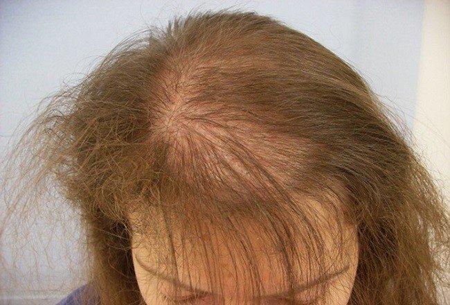e688cc11cd46618f8b4b096ae0d9eee3 Народні засоби від випадіння волосся у  жінок в домашніх умовах 8691955e2ab0d