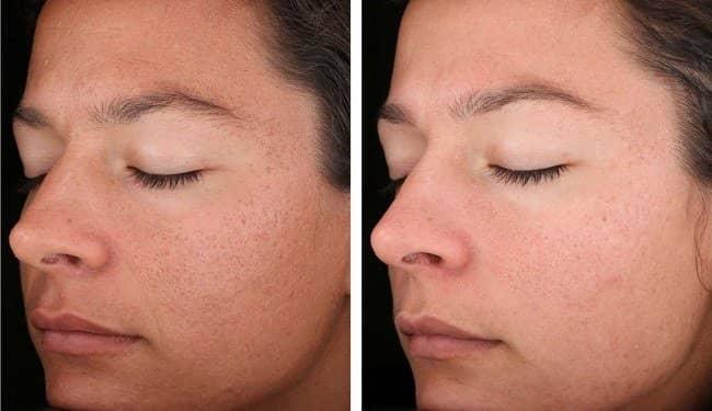 f4c8a20999d60f6483b64bcce15dcced Пилинг лица — косметологическая процедура. Виды пилинга. Фото до и после