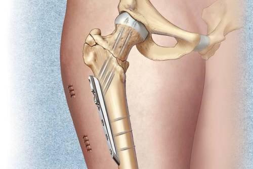 мужских перелом шейки бедра что делать 30 лет для объяснительного