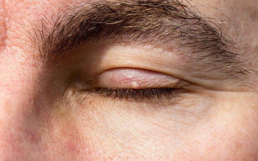 Она мягкая на ощупь и чаще всего располагается на верхнем веке, хотя может появиться и в углу глаза или под ним.